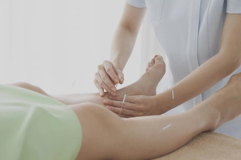 -2 acupuncture-for-pain-relief-by-chiropractor